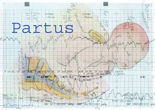 Partus_Postcard